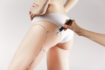 Penisvergrößerung des plastischen Chirurgen