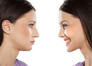 Nasenkorrektur: vorher/nachher