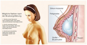 Silikon-Implantat, Schoenheitsoperation