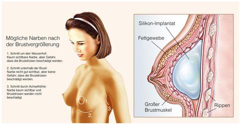 Po Vergrößerung mit Implantaten: Info, Kosten &